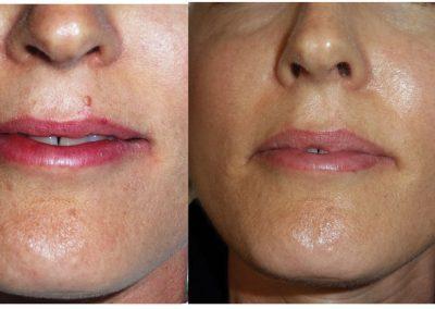 Skin Transformation